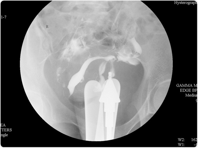 Hysterosalpingography (HSG) is a fluoroscopic X-ray study of a woman