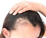 Baldness treatment using a medication for osteoporosis