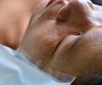 How to Treat an Eye Injury