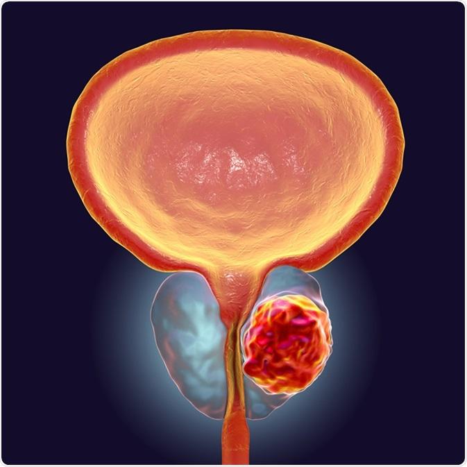 Cáncer de próstata, ejemplo 3D que muestra la presencia de tumor dentro de la casquillo del prensaestopas de próstata cuál comprime la uretra. Haber de imagen: Kateryna Kon/Shutterstock