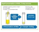 Stabilization of mRNA in Urine to Aid Diagnostic Tests for Prostate Cancer