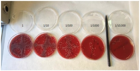 Colony counting on agar plates. A dilution series of C. albicansspiked into whole blood, plated and counted by eye.