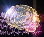 FDA approves cannabis based drug for severe form of epilepsy