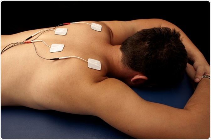 Transcutaneous electrical nerve stimulation (TENS) therapy. Image Credit: DreamBig / Shutterstock