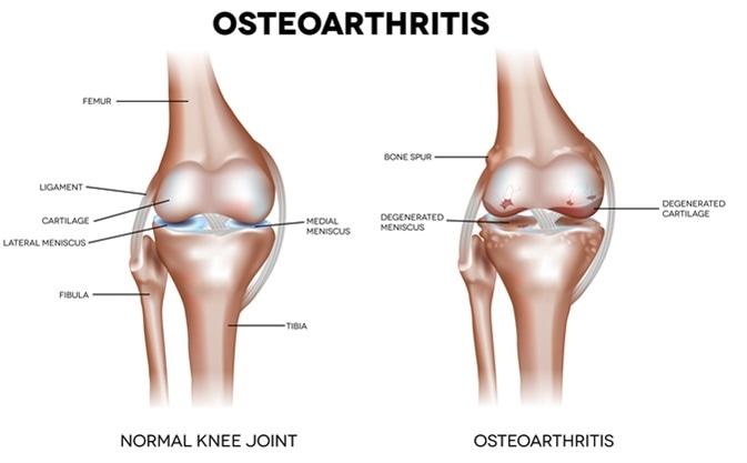 Osteoartrite del ginocchio ed anatomia dettagliata della giunzione normale. Credito di immagine: Tefi/Shutterstock