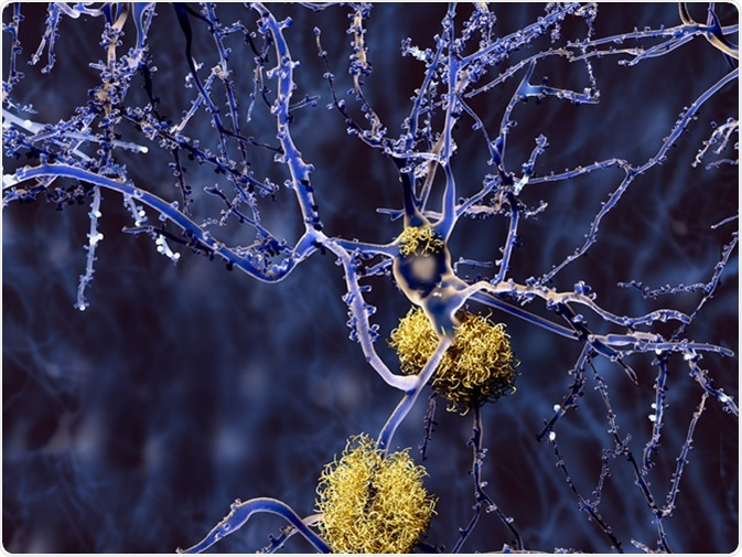 Enfermedad de Alzheimer: neurona con las placas amiloideas. Haber de imagen: Juan Gaertner/Shutterstock