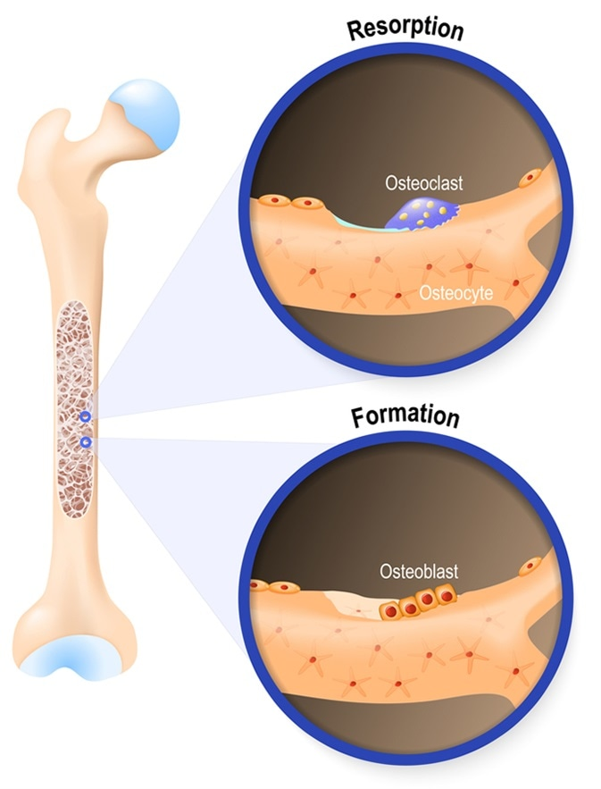 Osteoblast and osteoclast. The bone remodeling process. In a healthy body, osteoclasts and osteoblasts work together to maintain the balance between bone loss and bone formation. Image Credit: Designua / Shutterstock
