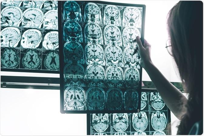MRI of Alzheimer