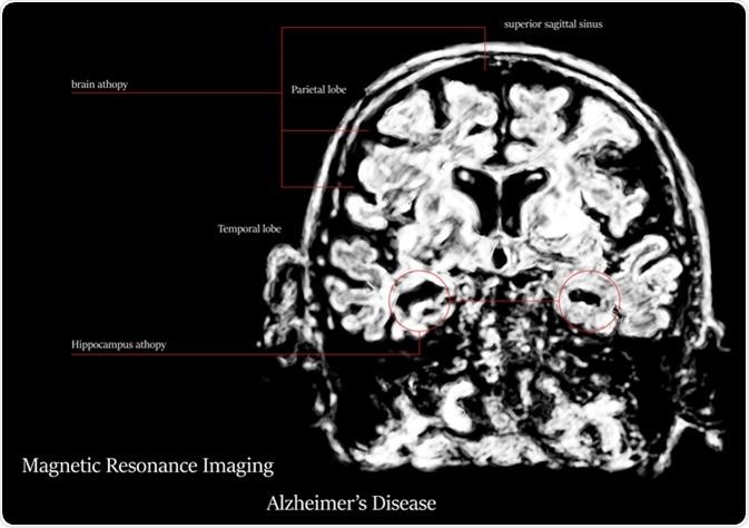 Doença de Alzheimer MRI. Crédito de imagem: Atthapon Raksthaput/Shutterstock