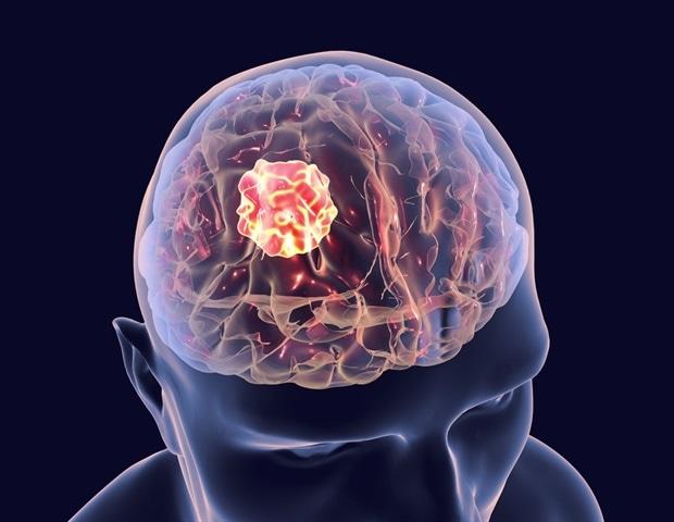 Brain Cancer%2c 3D Illustration Showing Presence Of Tumor Inside Brain   Kateryna Kon M1 6704c47fefe0477dbe1cd3351402914f 620x480