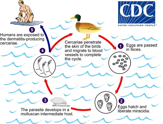 Cercarial dermatitis life cycle