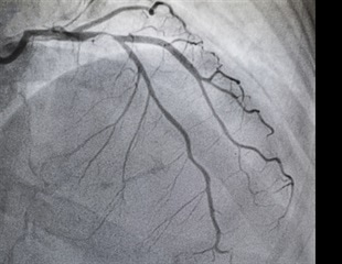 Researchers analyze coronary angiography video interpolation methods to reduce X-ray exposure frequency