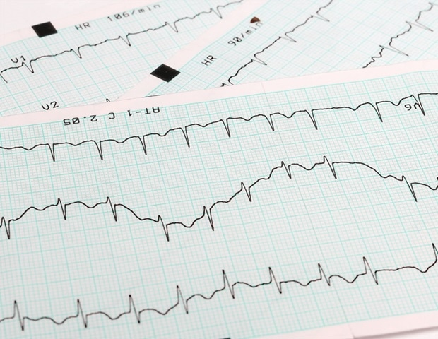 Experts develop quality indicators for management and outcomes of adults with atrial fibrillation – News-Medical.Net
