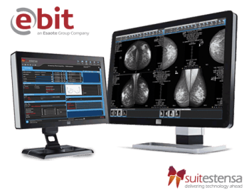 SUITESTENSA MG: Mammography Information System and PACS Software from Esaote