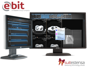 SUITESTENSA RT: Radiotherapy Software from Esaote
