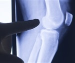 New smart knee implants could monitor changes in activity as they happen