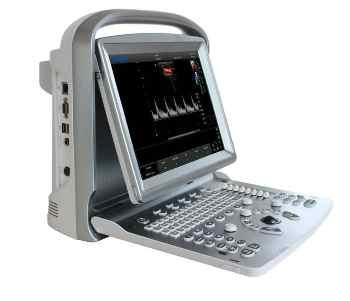 Sonologic's ECO 5 Ultrasound System