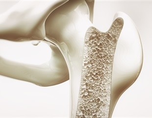 FDA approves novel 3D-printed talus implant for humanitarian use