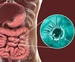 Entamoeba gingivalis linked to severe and recurrent periodontitis