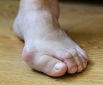 Alpha Orthotics Splayfoot Insole launched in the U.S.