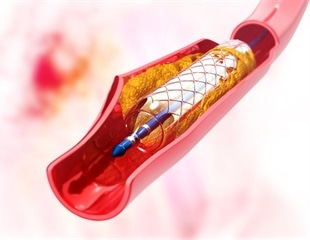 New exosome-coated stent repairs damaged tissue, heals vascular injury
