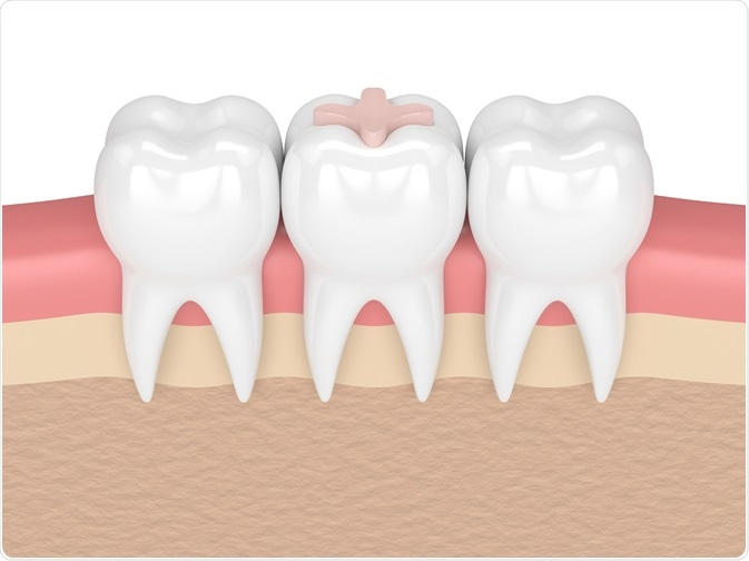 Bioactive glass for dentistry
