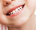 Fluoride varnish prevents tooth decay in young children