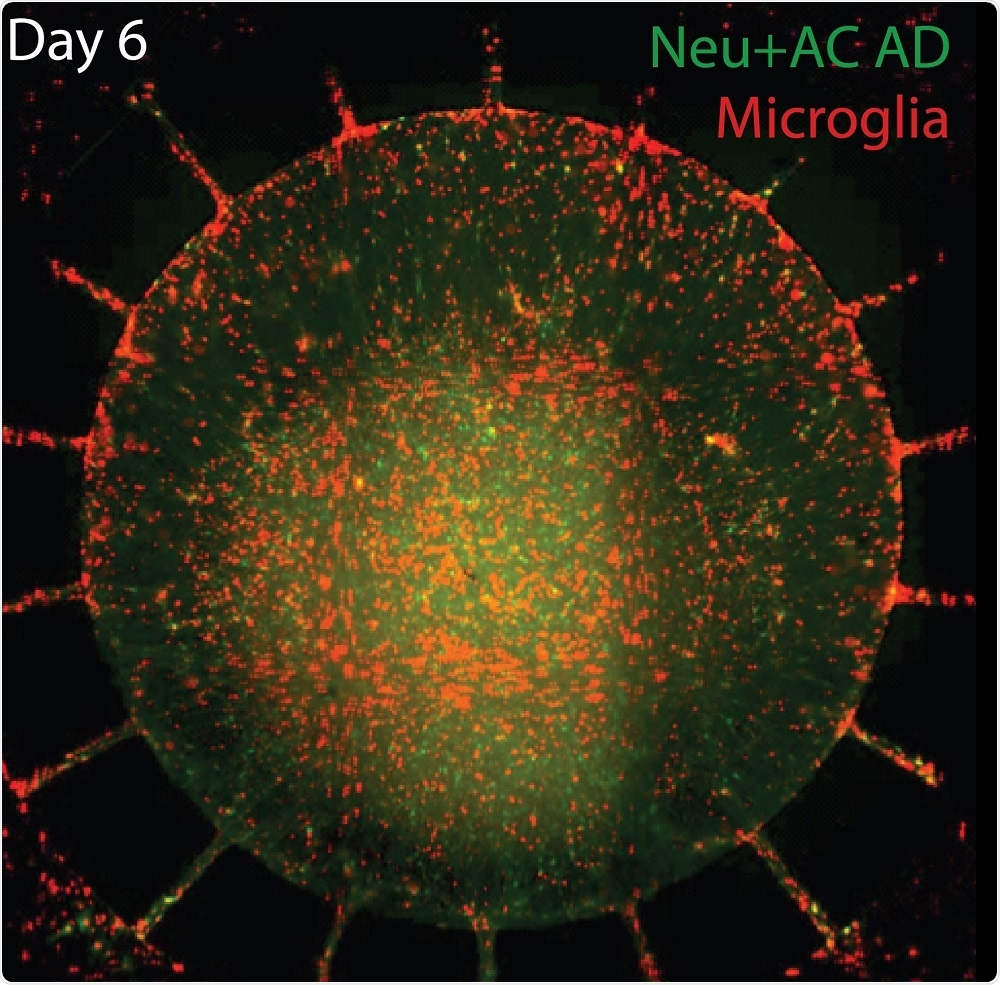 Six days after activated microglia (red) were added to the outer chamber of the new microfluidic device, the inflammatory cells migrate through channels into the inner chamber, containing cultured neurons and astrocytes (green) with gene variants associated with familial Alzheimer