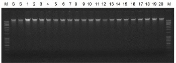 Saliva DNA Isolation 96-Well Kit from Bio-Synthesis