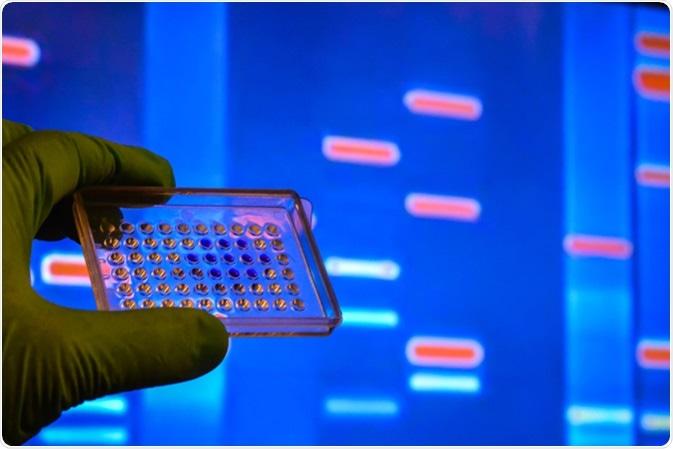 Prova del DNA in un laboratorio scientifico. Ricerca del genoma facendo uso dei metodi moderni di biotecnologia. Credito di immagine: Sergei Drozd/Shutterstock