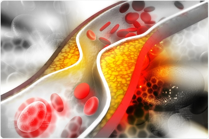 Cholesterol plaque in artery, illustration. Image Credit: hywards / Shutterstock