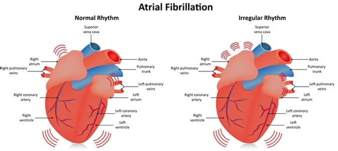 Atrial Fibrillation - Image Credit: Joshya / Shutterstock