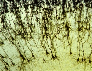 Gut hormone found to be key regulator of new nerve cells in the adult brain