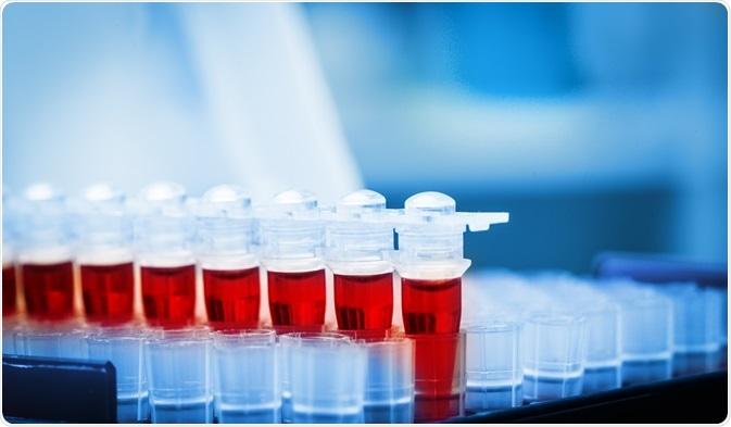 Procalicitonin é um biomarker para a inflamação do pulmão, geralmente - visto em infecções das vias respiratórias.