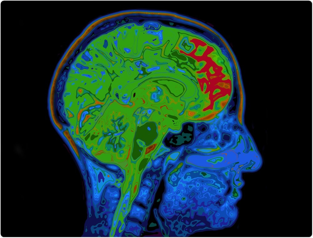 Brain scan with healthy green regions and red unhealthy regions