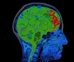 Why some patients with brain markers for Alzheimer's never develop the condition