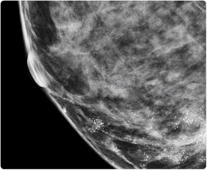 Microcalcifications in Breast