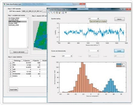 Renishaw Data Classification application developed for building, testing and validating cancer classification models