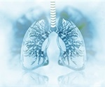 Researchers success in transplanting bioengineered human lungs into pigs