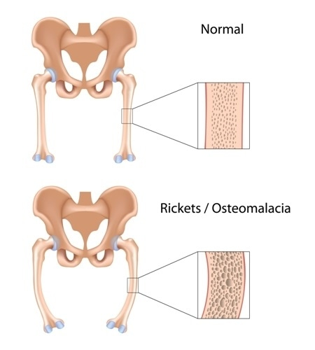 Rickets. Image Credit: Alila Medical Media / Shutterstock