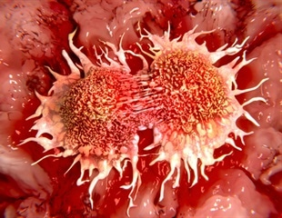 New type of drug significantly increases survival of bladder cancer patients