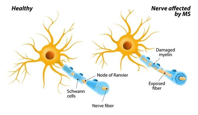 Maladie auto-immune de sclérose en plaques ou de Mme. les nerfs du cerveau et de la moelle épinière sont endommagés par son propre système immunitaire. ayant pour résultat la perte de contrôle, de visibilité et de reste de muscle. Crédit d