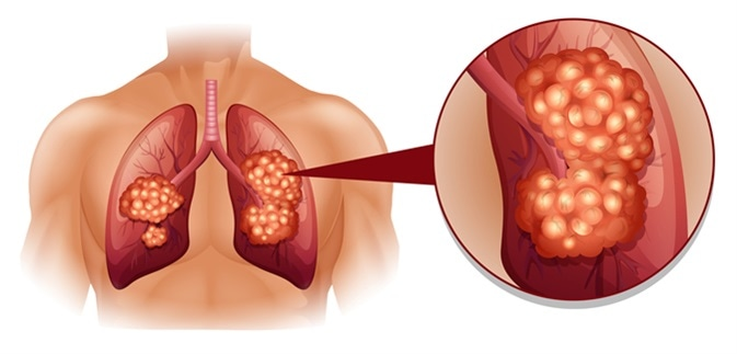 Lung cancer illustration. Image Credit: BlueRingMedia / Shutterstock