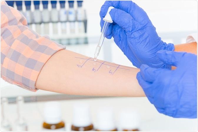 Doctor doing allergy tests. Image Credit: Monika Wisniewska / Shutterstock