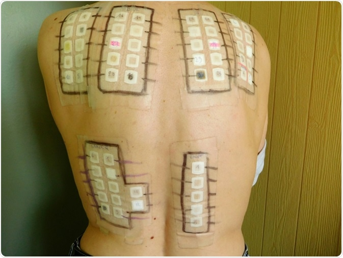 Epicutaneous allergy test on the skin of the back. Image Credit: Jessi et Nono / Shutterstock