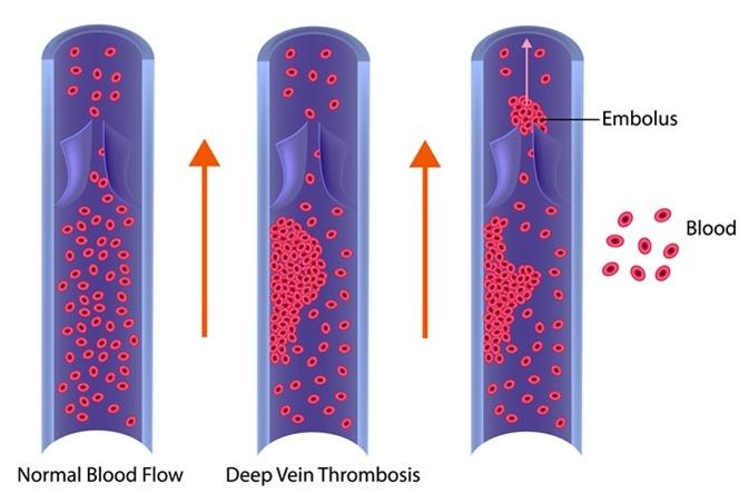 Deep Vein Thrombosis or Blood Clots. Embolus. Image Credit: Sakurra / Shutterstock