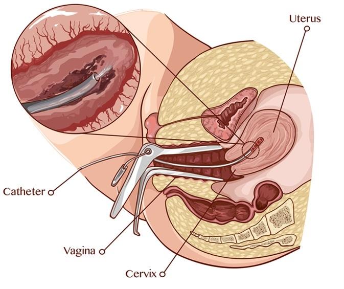 Biopsia dell