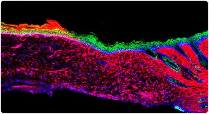 The image represents the first proof of principle for the successful regeneration of a functional organ (the skin) inside a mammal, by a technique known as AAV-based in vivo reprogramming. Epithelial (skin) tissues were generated by converting one cell type (red: mesenchymal cells) to another (green: basal keratinocytes) within a large ulcer in a laboratory mouse model.