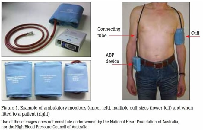 Image Credit: National Heart Foundation and High Blood Pressure Research Council of Australia Ambulatory Blood Pressure Monitoring Consensus Committee