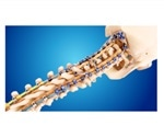 Medtronic announces U.S. launch of Infinity OCT System